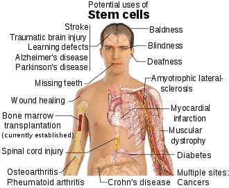 Stem cell_treatments